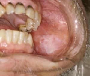 Leukoplakia - Dyskeratosis Congenita