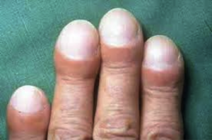 Pulmonary Fibrosis Nails